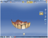 Figure 4 The CAD software proposed a restoration for tooth No. 9 that was an exact replica of its preoperative shape and contours.