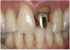 Figure 8 A patient presented with a fractured porcelain crown on tooth No. 9.