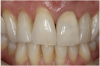 Figure 13 The crown was stained and glazed to match tooth No. 8, then adhesively cemented following patient approval.