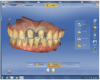 "Figure 15 After scanning the ""Buccal Bite,"" the software compiled the three scans to mimic the patient's maximum intercuspation."